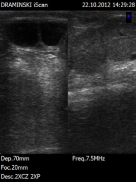 twin-pregnancy-cow-ultrasound-images-1